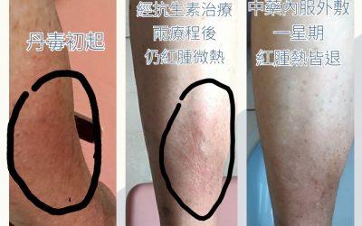 莊醫師分享: 較特別的皮膚病驗案系列